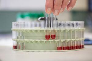 Testing Diagnosis Labs Treatment
